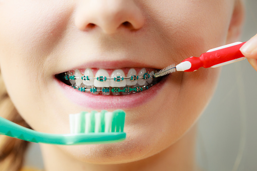 a smiling patient with braces from Naborowski Orthodontics, practicing dental hygiene